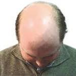 Cara Alami Menumbuhkan Rambut pada Kepala yang Botak
