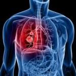 Pengobatan untuk Kanker Paru stadium 4