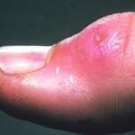 Gejala Penyakit Tularemia