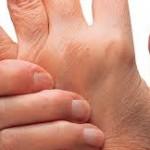 Solusi Alami Atasi Penyakit Asam Urat