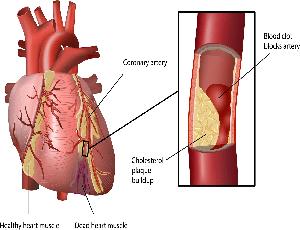 Konsultasi Masalah Arteriosclerosis yang Cukup Berbahaya