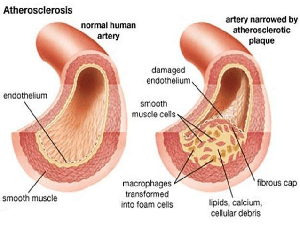 Mendiagnosis Arteriosclerosis dalam Dunia Kedokteran