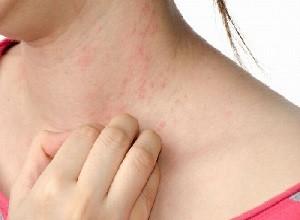 Obat Herbal Penghilang Rasa Gatal Pada Kulit