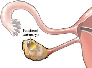 Pengaruh Folikel ovarium Terhadap Kehamilan